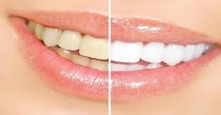 Strawberry Toothpaste To The Rescue Of Yellow Teeth