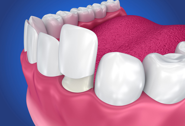 What Are Dental Crowns For Children