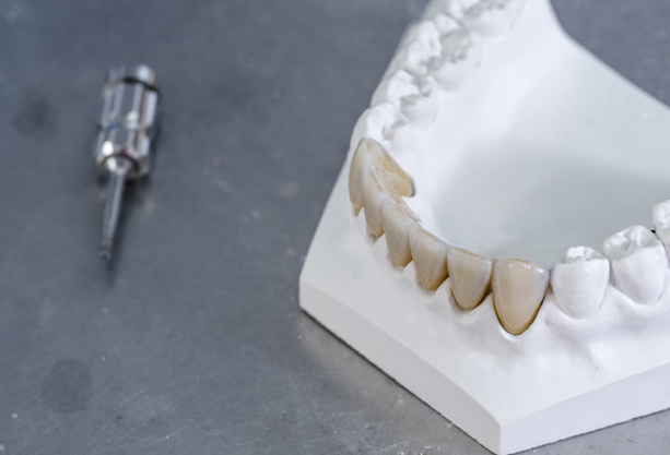 What Are Zirconia Dental Crowns
