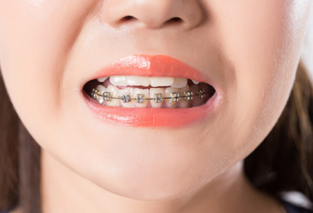 What Is Early Orthodontic Treatment