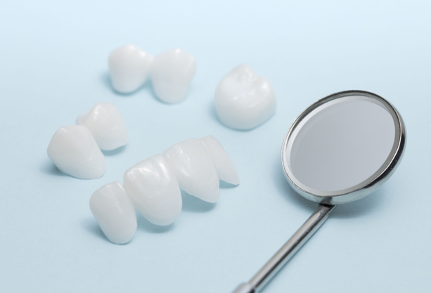 Why Might Dental Bridges Be Needed