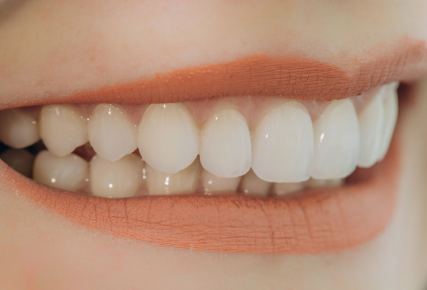 Why Might Porcelain Veneers Be Needed