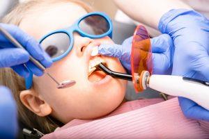 pediatric dentist for fillings
