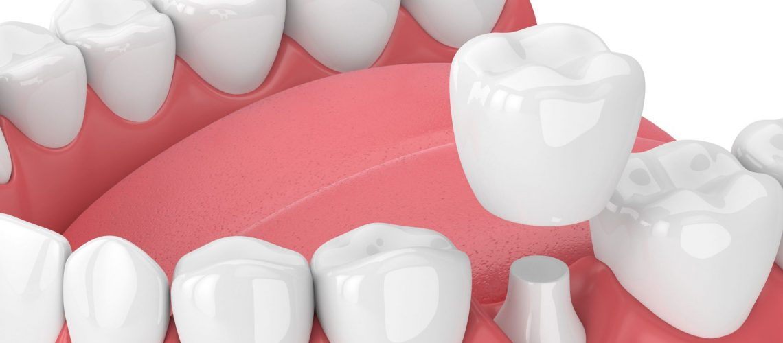 Dental Implants Combine Functionality And Aesthetics
